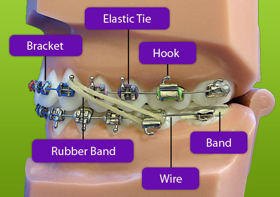 Braces Diagram Berkman & Shapiro Orthodontics Commerce Township MI 48382