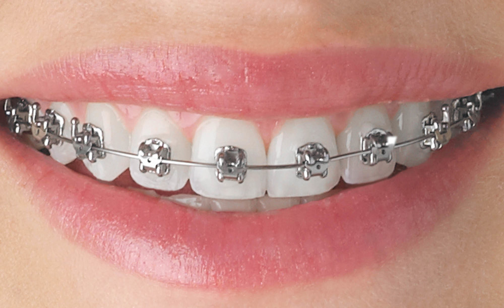 Over the next several weeks, we'll be discussing the different types of braces you can choose to get your spectacular smile. This week, it's all about silver and laroncauskimmor.gqr: Dr. Nick Savastano.