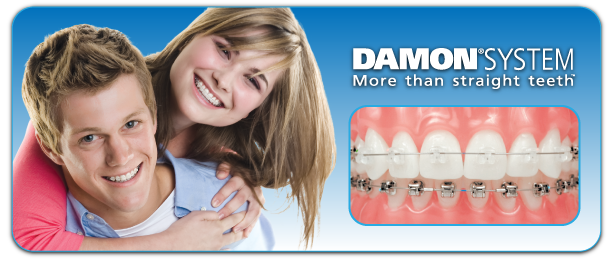 Damon System Commerce Township, MI at Berkman and Shapiro Orthodontics